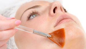 GoStom Medycyna estetyczna Chełmno - peeling
